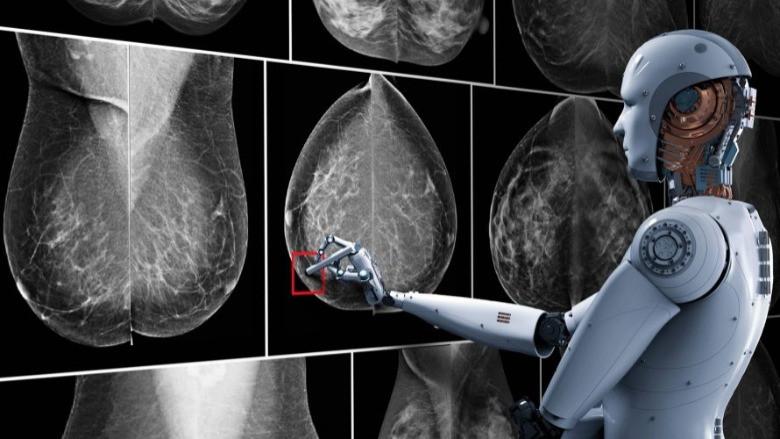 Yapay zeka karaciğer kanserini tedavi edebilecek